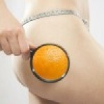 Cellulite: cause e rimedi in vista dell'estate