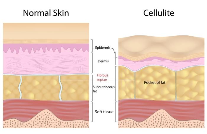 eliminare la cellulite dietaok cuscinetti pelle a buccia d'arancia fasi
